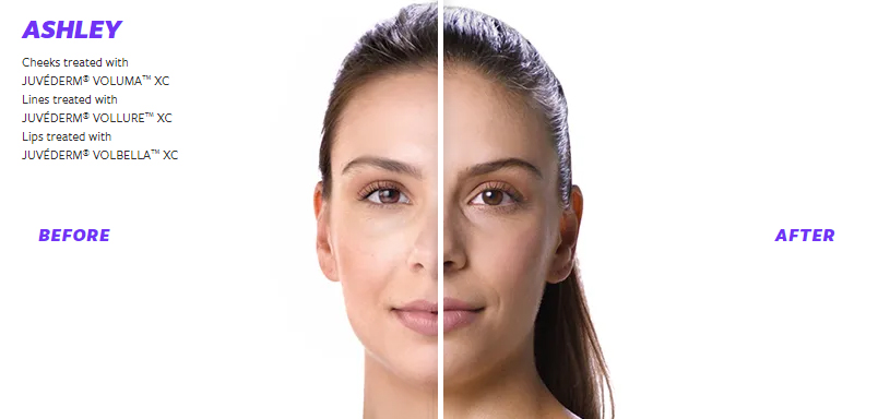 JUVÉDERM Before and After